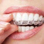 Ortodoncia invisible un método económico y de calidad que ofrece Bocanova Grupo Dental. Adiós brackets.